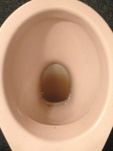 Toilet cleaning limescale removal